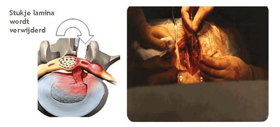 De Klieke Open Hernia Operatie