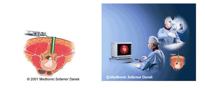 micro-endoscopische-opera