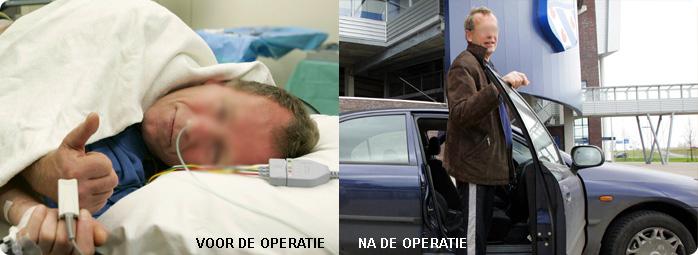 voor-en-na