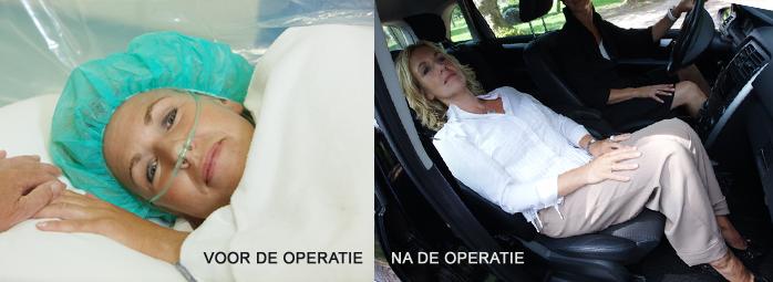 herstel na stenose operatie
